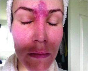 Синяки и уплотнения после ботулинотерапии