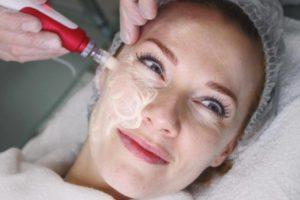Введение сыворотки при проведении процедуры BB Glow New Skin Treatment